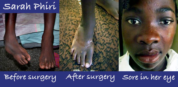 Sarah Phiri's health challenges