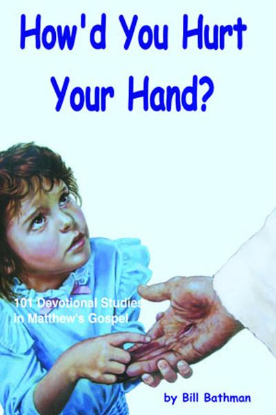 How'd You Hurt Your Hand by Bill Bathman